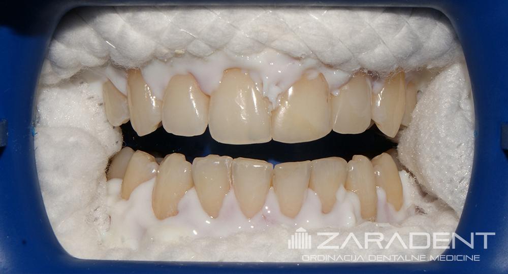 Ласерско избјељивање зуба цијена