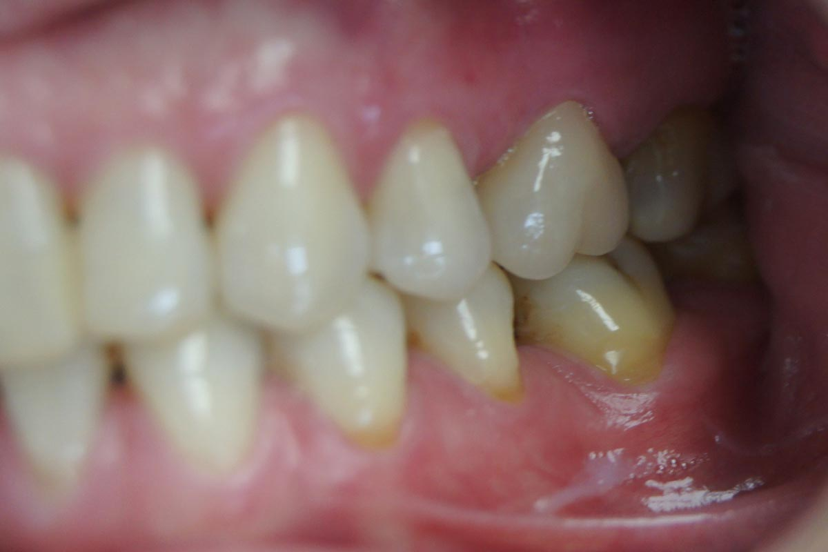 All-ceramic E-max crown on the upper left first molar