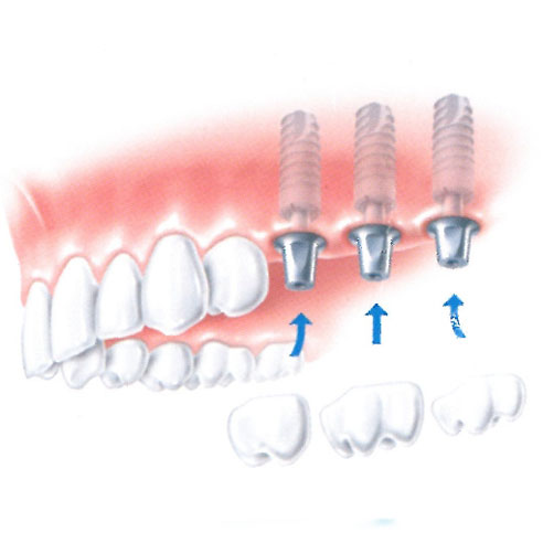 On each implant a dental crown is placed