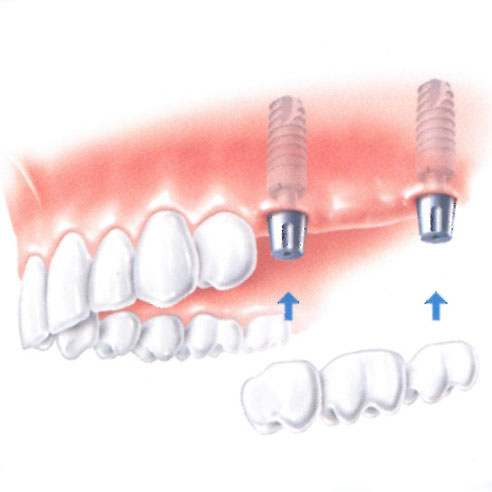 Implants are placed to act as the bridge pillars to which the bridge is permanently attached