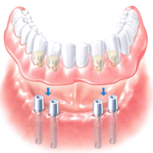 By placing four or sometimes even two implants it is possible to attach dental prosthetics to them which is easy to detach and clean and afterwards return to mouth. These prosthetics are stable, they restore confidence and security to the patient who can enjoy life without any obstacles again.